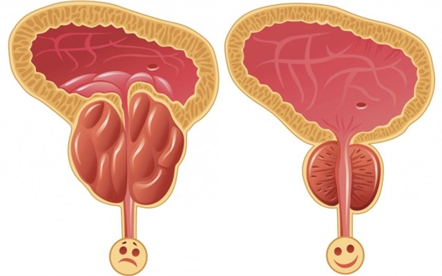 Резь и жжение в мочеиспускательном канале у мужчин: причины, диагностика, лечение