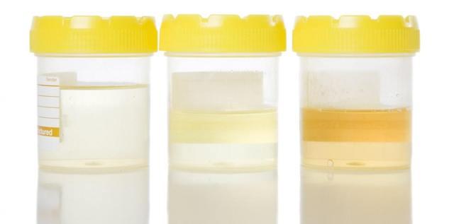 Эритроциты в моче у ребенка:  норма, причины повышения