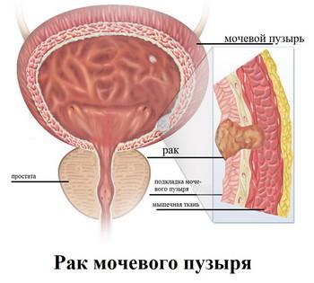 Рак мочевого пузыря у женщин: причины, первые признаки, лечение