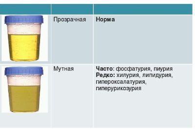 Общий анализ мочи: норма у женщин, мужчин и детей, расшифровка, подготовка к исследованию