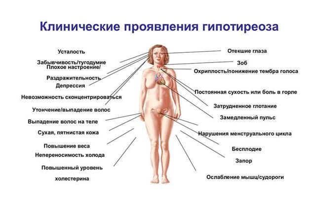 Гипокортицизм: симптомы, диагностика, лечение и прогноз