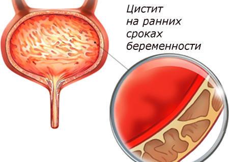 Цистит на ранних сроках беременности: причины, симптомы, лечение, опасен ли он