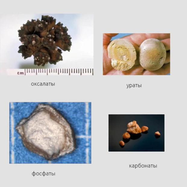 Уролитиаз: виды, причины, симптомы, диагностика и лечение