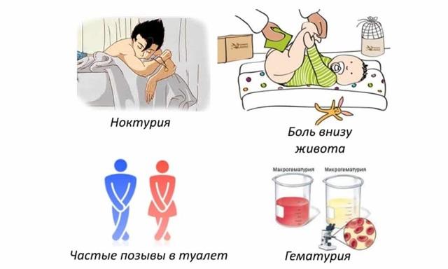 Сколько лечится цистит у женщин: проявления и сроки терапии заболевания