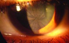 Что такое болезнь Андерсона-Фабри: симптомы, диагностика, лечение