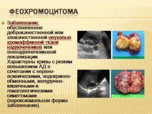 Феохромоцитома надпочечника: симптомы, диагностика и лечение