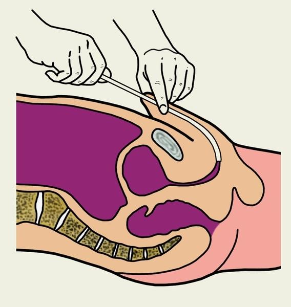 Ретроградная и микционная уретрография у мужчин: что это