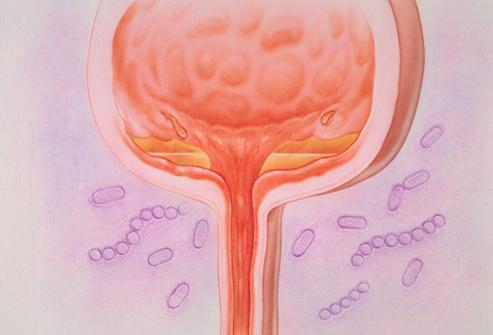 Воспаление мочевого пузыря: причины, симптомы, методы лечения у женщин