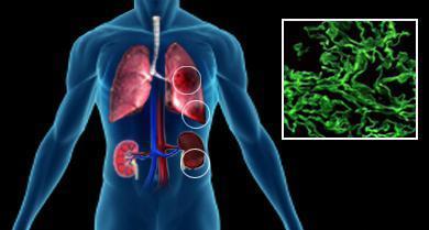 Синдром гудпасчера: причины, симптомы, диагностика и лечение