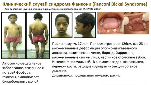 Болезнь Де Тони Дебре Фанкони: причины, симптомы, формы заболевания, лечение