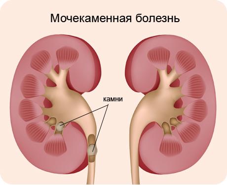 Мочекаменная болезнь: код по мкб 10, симптомы, лечение, профилактика