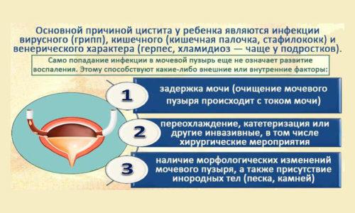 Эпителий плоский в моче у грудничка повышен