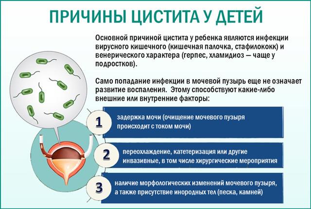 Наличие бактерий в моче у женщин и детей: причины, диагностика, лечение бактериурии