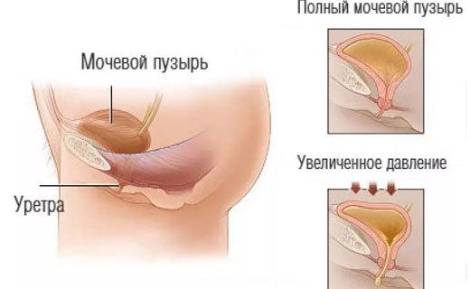 Мегацистис: причины увеличения мочевого пузыря у плода 12 недель