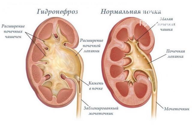 Камень в мочеточнике у мужчин: симптомы, диагностика и лечение