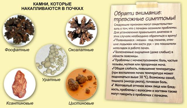 Растворение камней в почках: медикаменты, народная терапия и диета