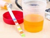 Мутная моча при беременности на ранних и поздних сроках: причины, чем опасна, диагностика