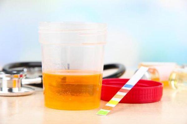Что означает кровь в моче у взрослых и детей: причины, симптомы, диагностика, лечение