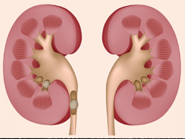 Спорыш: лечебные свойства и противопоказания, применение в урологии