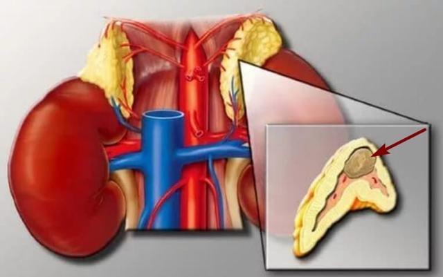 Опухоль надпочечников: симптомы, диагностика и лечение образований