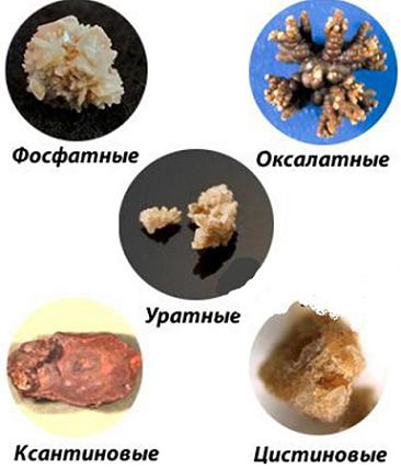 Камни в почках: как образуются, виды и профилактика болезни