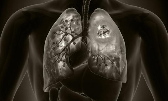 На здоровье мочевого пузыря могут влиять электронные сигареты