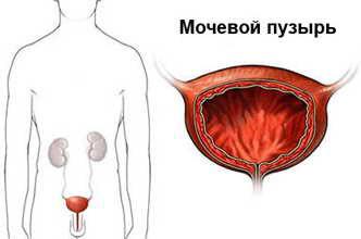 Техника катетеризации мочевого пузыря у мужчин, женщин и детей