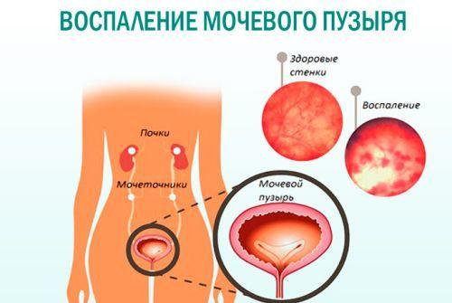 Можно ли заниматься сексом при остром и хроническом цистите