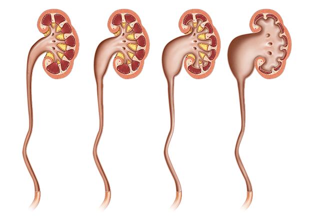 Гидронефроз степени: симптомы, классификация, лечение и прогноз