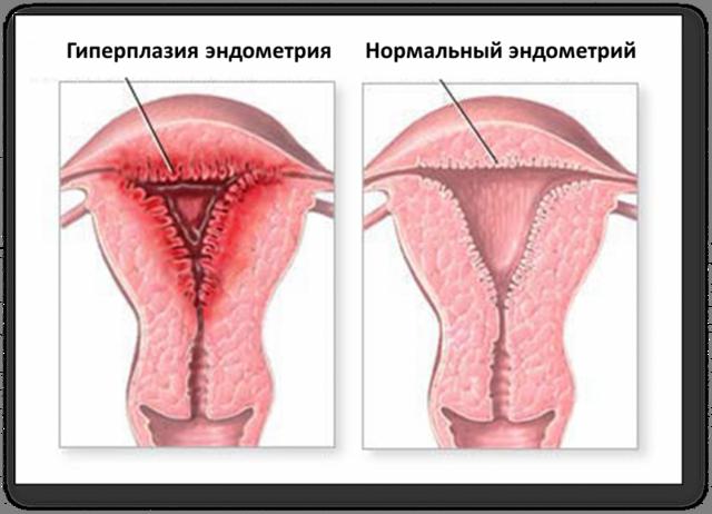 Викарная гипертрофия почки: причины, симптомы и лечение