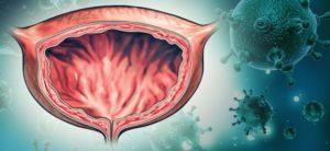 Уростаз почки: что это такое, симптомы застоя мочи в почках и мочевом пузыре