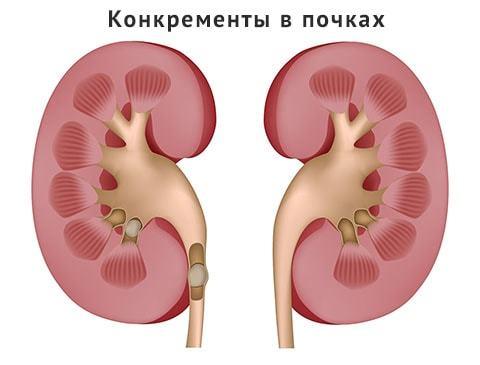 Конкременты в правой и левой почках: виды, симптомы и лечение