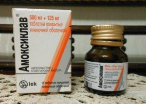 Цистит при грудном вскармливании: симптомы, лечение препаратами и народными средствами