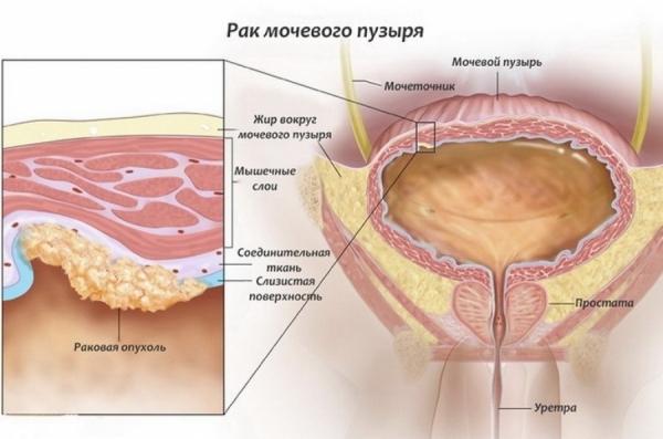 Рак мочевого пузыря у мужчин: стадии, признаки, лечение, выживаемость