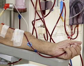 Гемодиализ: показания к применению, стоимость и противопоказания