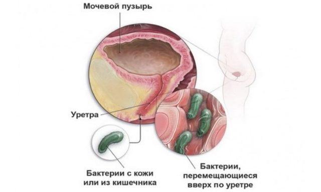 Цистит и уретрит у женщин и мужин: как отличить, лечение