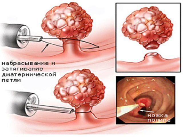 Полипы в мочевом пузыре у женщин: симптомы и лечение заболевания