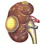 Острый пиелонефрит: симптомы, лечение, обострение, код по МКБ-10