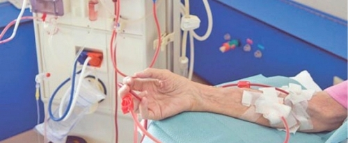 Амилоидоз почек: причины, симптомы, диагностика и лечение