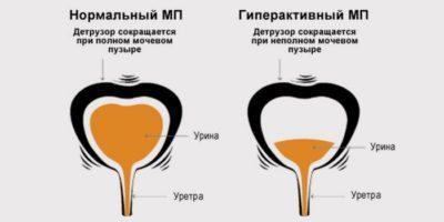 Нейрогенная дисфункция мочевого пузыря у детей: причины, симптомы, лечение