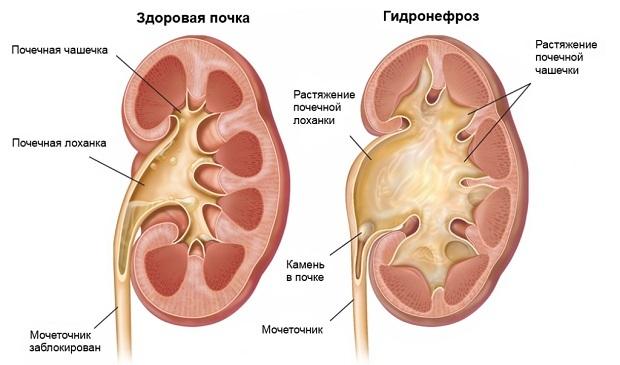 Гидронефроз левой почки: степени, причины, симптомы и лечение