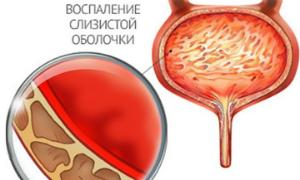 Боль при мочеиспускании у женщин: причины, симптомы, лечение медикаментами и народные средства