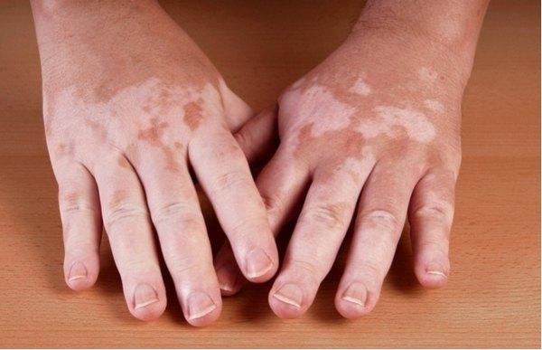 Болезнь Аддисона: симптомы и лечение надпочечниковой недостаточности