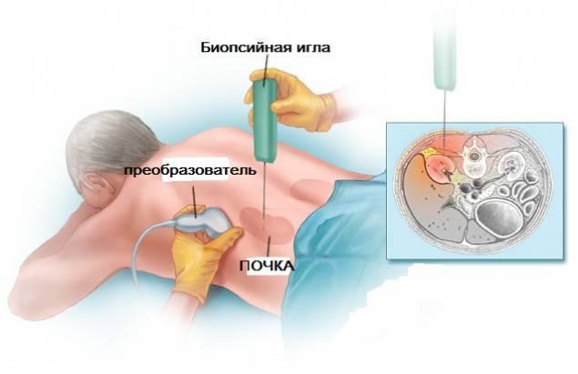 Люпус нефрит: причины, симптомы, диагностика, лечение и прогноз