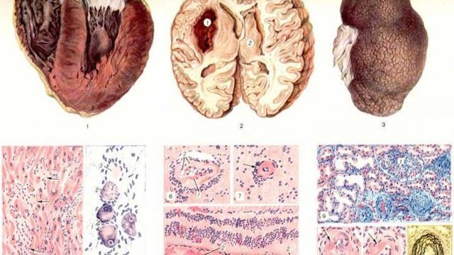 Почечный синус: строение, функции и причины возникновения патологий
