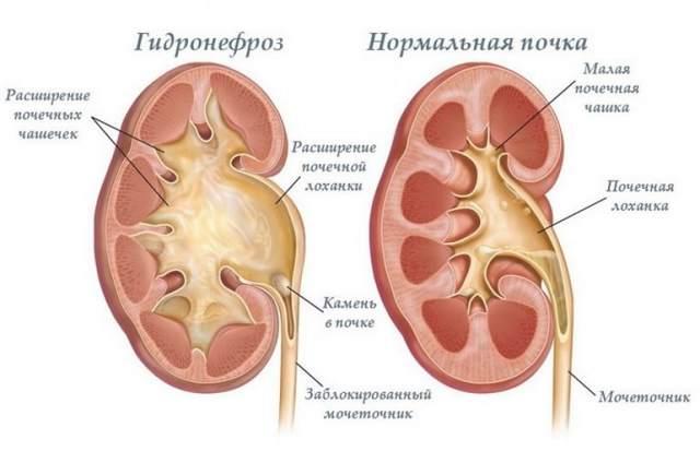 Парапельвикальная киста почек: причин, виды, диагностика и лечение