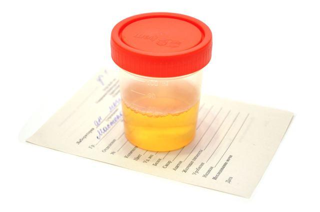 Соли в моче при беременности: причины повышения