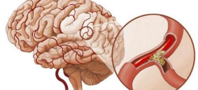 Почечное давление: признаками, симптомы и лечение народными средствами