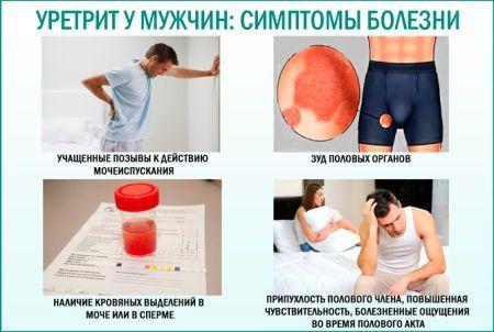 Острый уретрит у мужчин: лечение