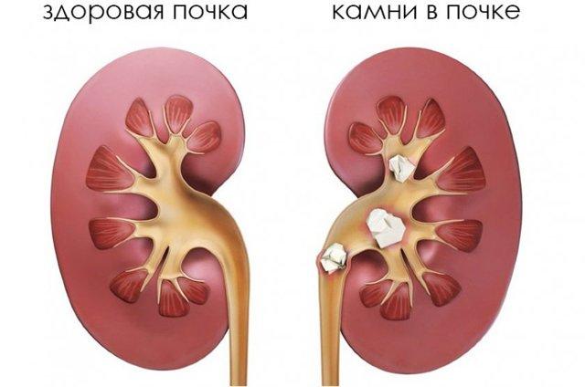 Корень шиповника: лечебные свойства и противопоказания, рецепты